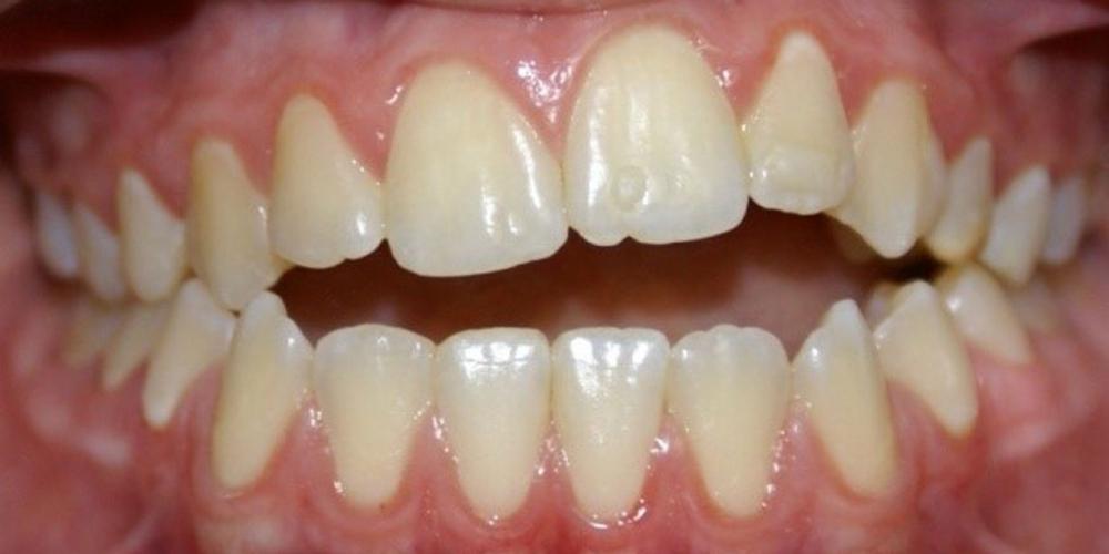 Результат исправления неровности зубов на верхней и нижней челюстях - фото №1