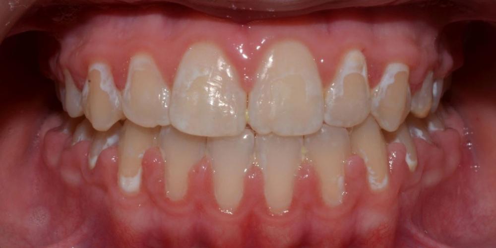 Результат исправления неровности зубов на верхней и нижней челюстях - фото №4