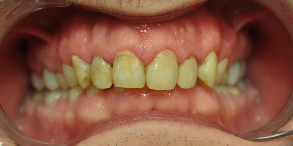 Замена множественных реставраций на зубах фронтальной группы на частичные коронки E-max - фото №1