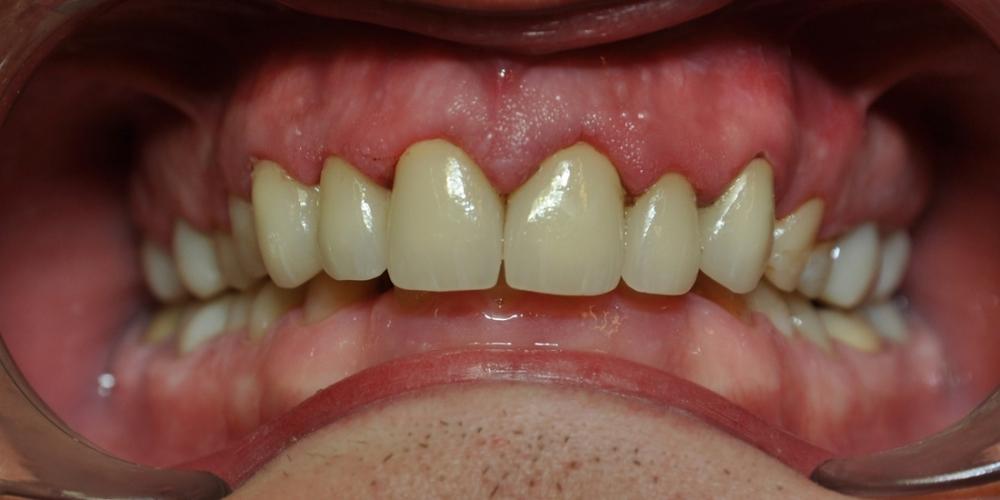 Замена множественных реставраций на зубах фронтальной группы на частичные коронки E-max - фото №2