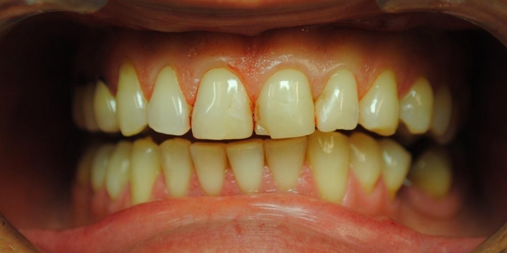 Заменены композитные реставрации на зубах фронтальной группы - фото №1