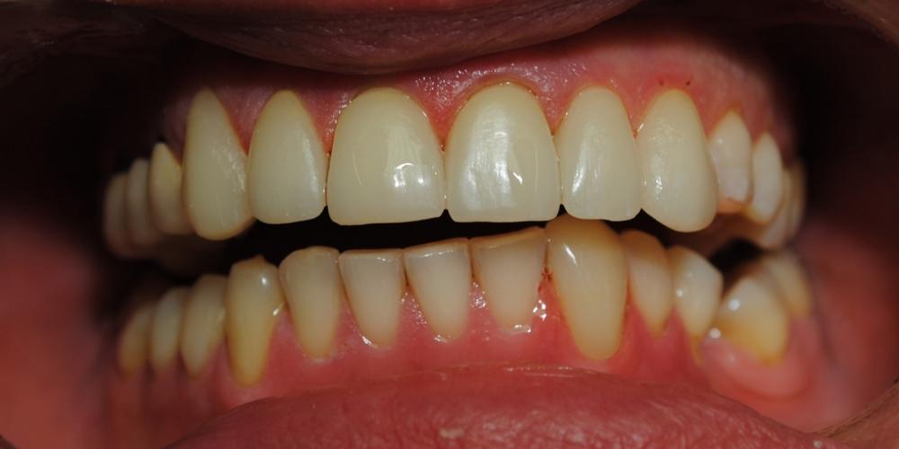 Заменены композитные реставрации на зубах фронтальной группы - фото №2