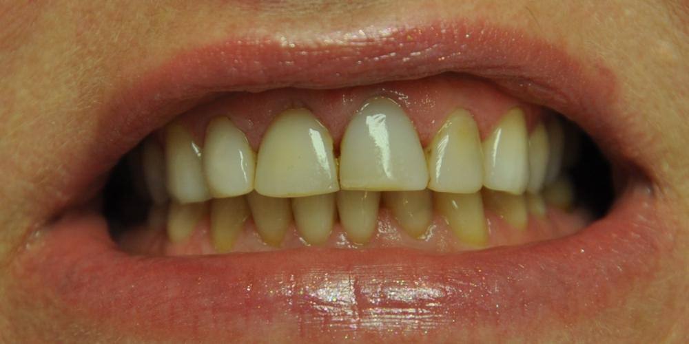 Пигментированные реставрации на зубах фронтальной группы - фото №1