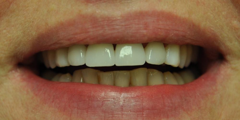 Пигментированные реставрации на зубах фронтальной группы - фото №2