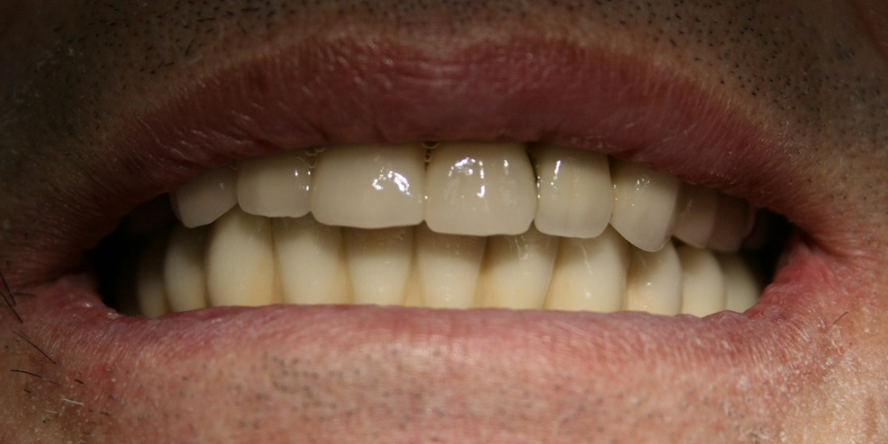 Полное протезирование мостовидными протезами с винтовой фиксацией на имплантатах Dentium - фото №3