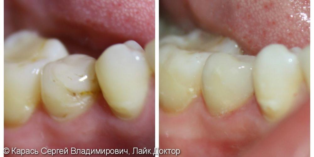 Восстановление формы, цвета и функции зуба 4.5 - фото №1