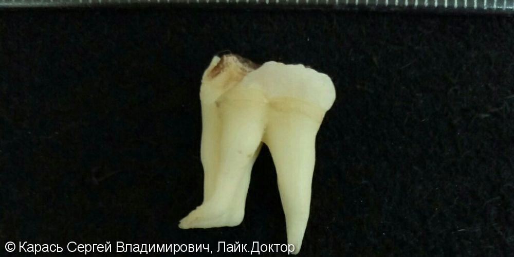 Простое удаление сложного зуба - фото №1