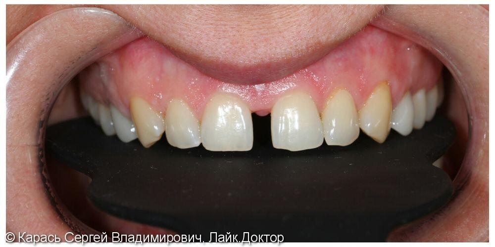 Тотальная реставрация верхней челюсти - фото №1