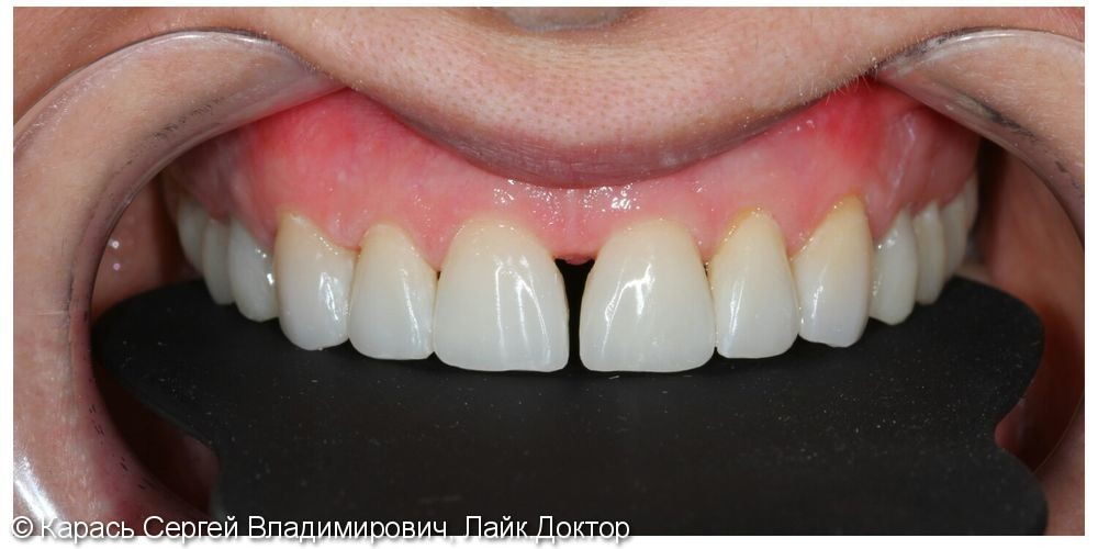 Тотальная реставрация верхней челюсти - фото №2