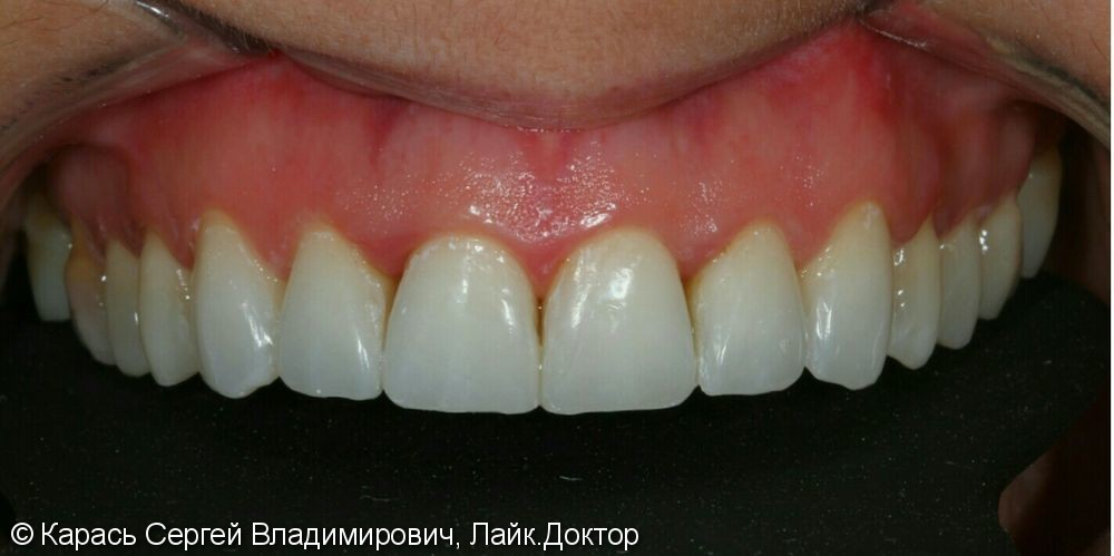 Реставрация 13 ти зубов на верхней челюсти - фото №2