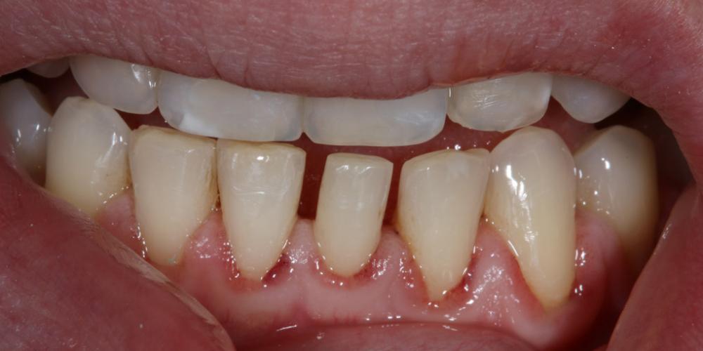 Терапевтический винир, микродентия зуба - фото №1
