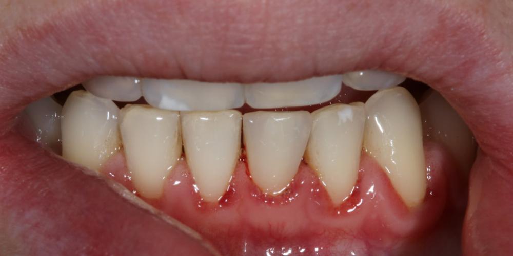 Терапевтический винир, микродентия зуба - фото №2