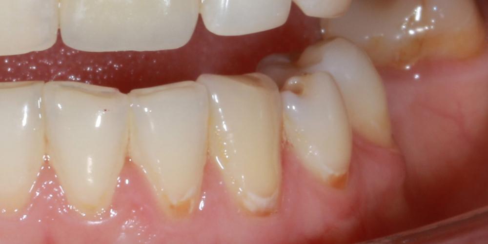 Лечение кариеса в зоне линии улыбки - фото №1