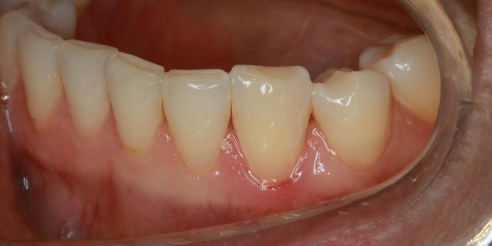 Лечение кариеса в зоне линии улыбки - фото №7
