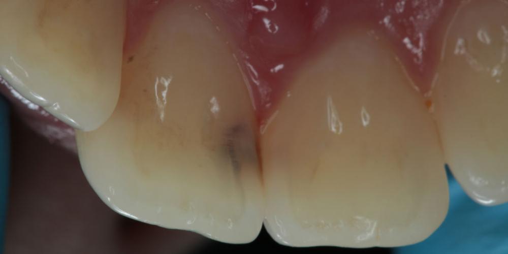 Лечение кариеса на фронтальных зубах с  использованием дентального микроскопа - фото №1