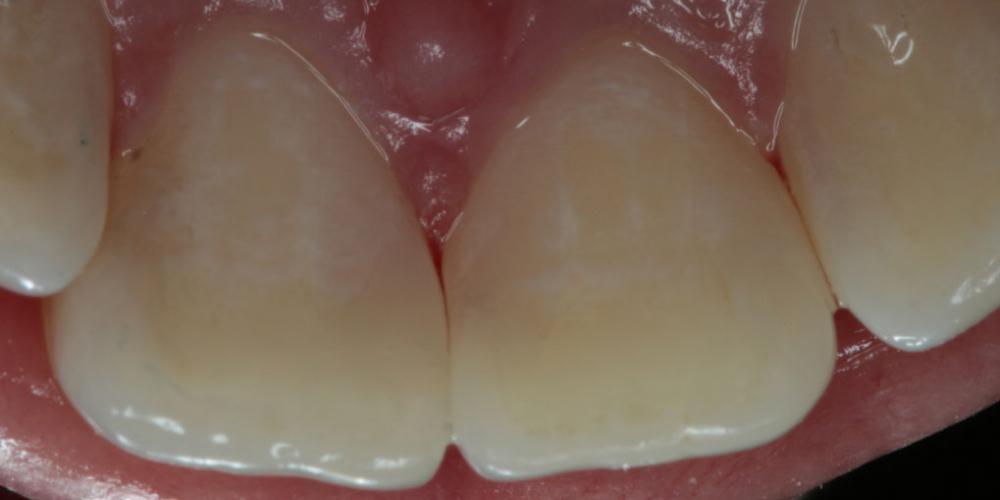Лечение кариеса на фронтальных зубах с  использованием дентального микроскопа - фото №2