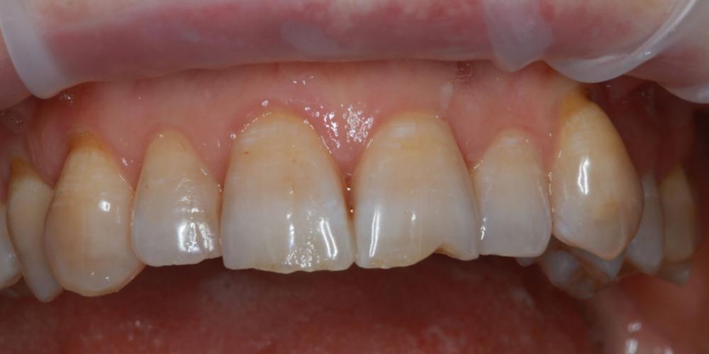 Результат наращивания двух передних зубов - фото №1