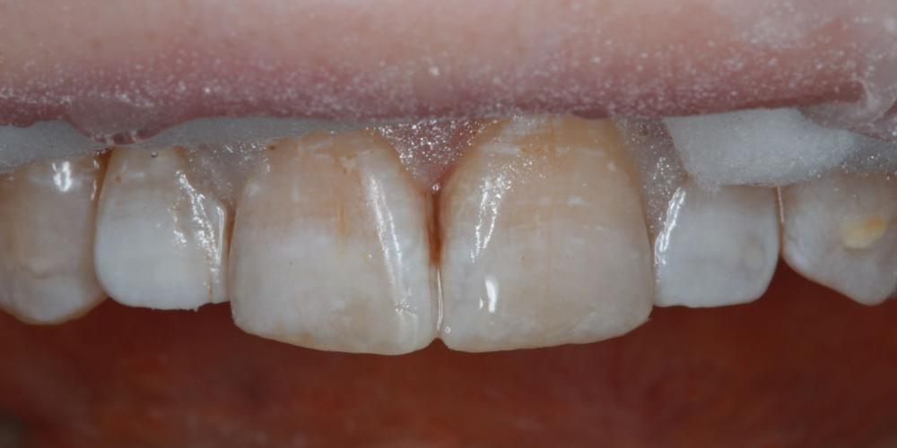 Результат наращивания двух передних зубов - фото №2