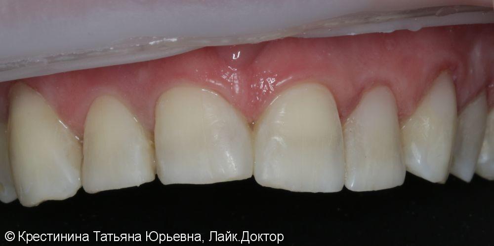 Лечение кариеса передних зубов, до и после - фото №7