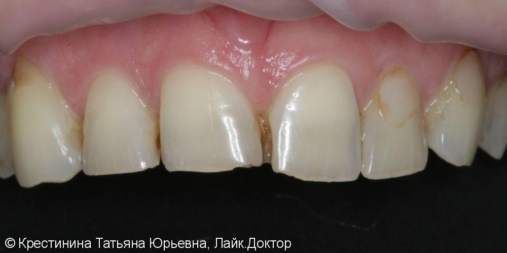 Лечение кариеса передних зубов, до и после - фото №1