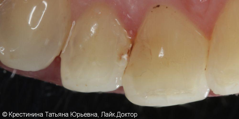 Лечение кариеса переднего зуба - фото №1
