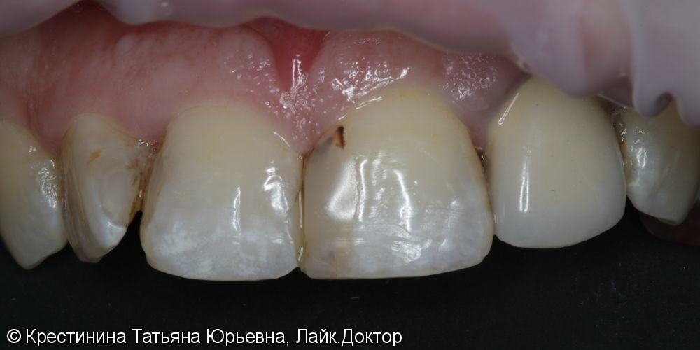 Лечение кариеса и  реставрация передних зубов - фото №1