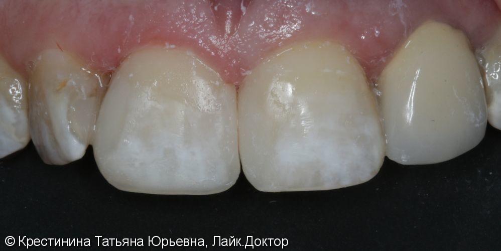 Лечение кариеса и  реставрация передних зубов - фото №3