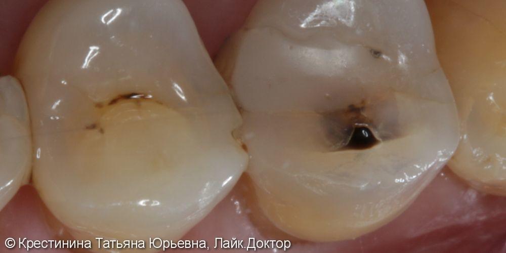 Лечение кариеса зубов - фото №1