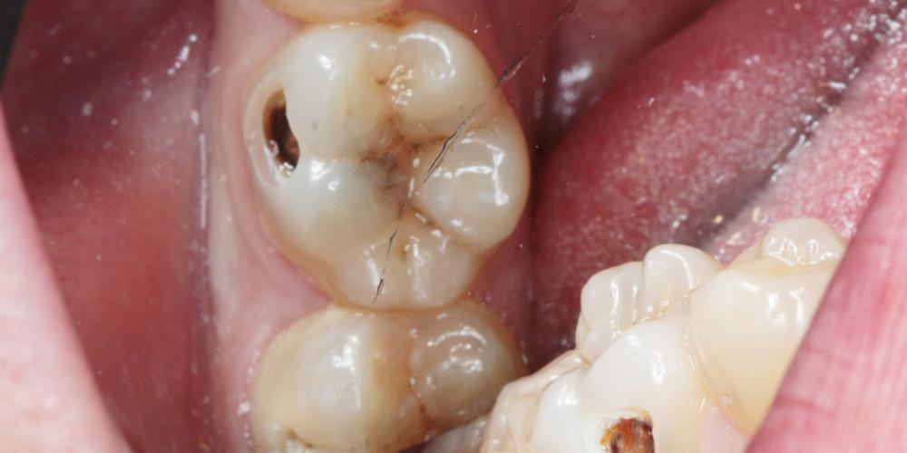 Лечим кариес на жевательном зубе - фото №1
