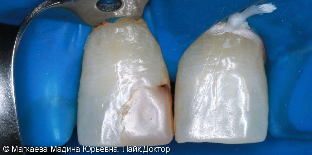 Реставрация зубов композитом - фото №1