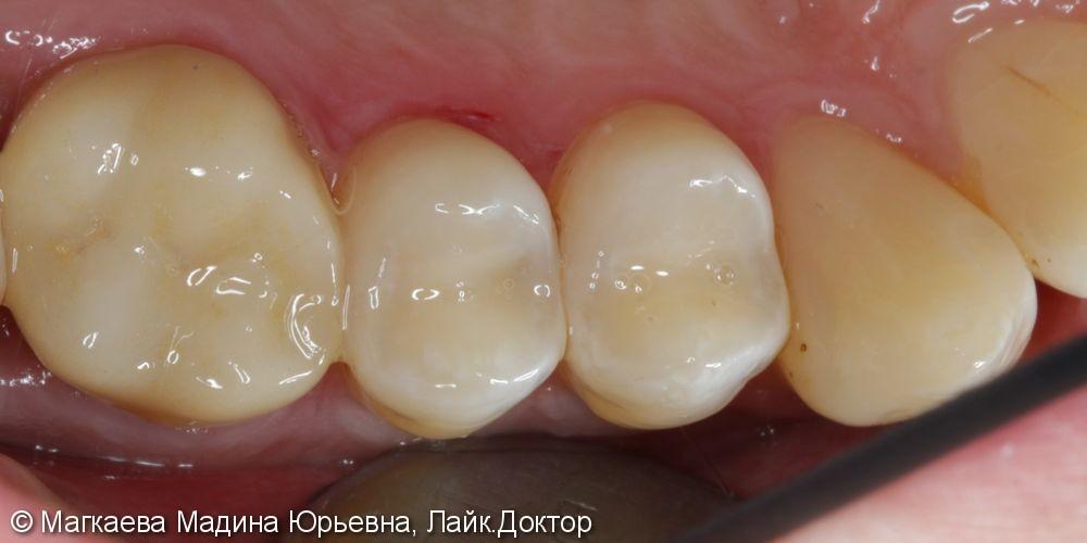 Лечение кариеса зубов нижней челюсти - фото №3