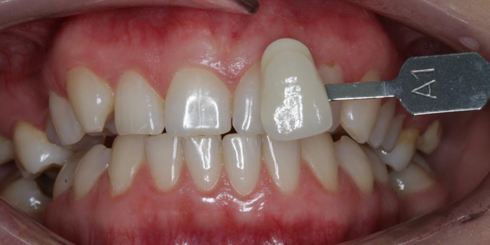 Результат отбеливания зубов ZOOM-4 с A1 до 0M - фото №1