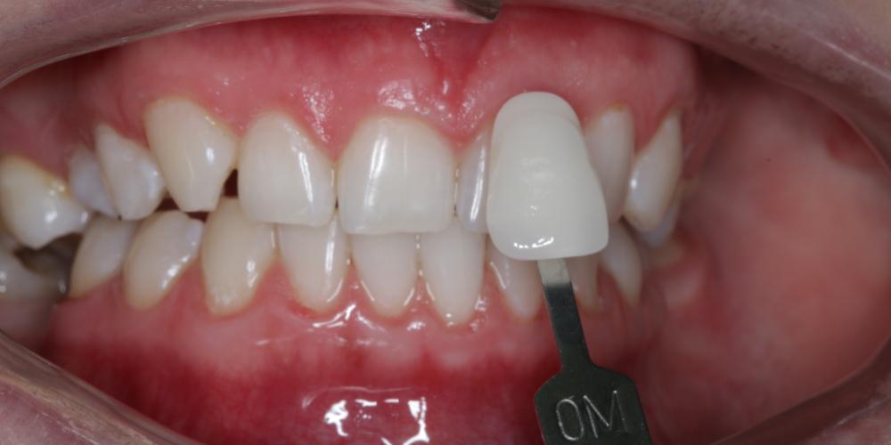 Результат отбеливания зубов ZOOM-4 с A1 до 0M - фото №2
