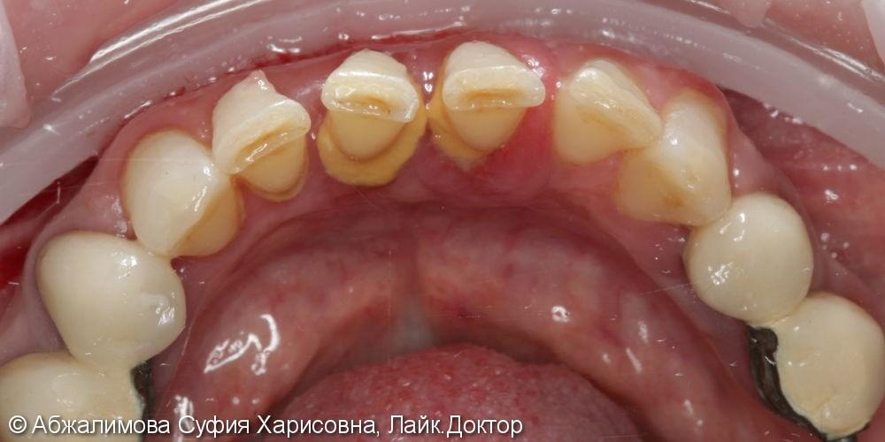Ультразвуковая чистка зубов, до и после - фото №2
