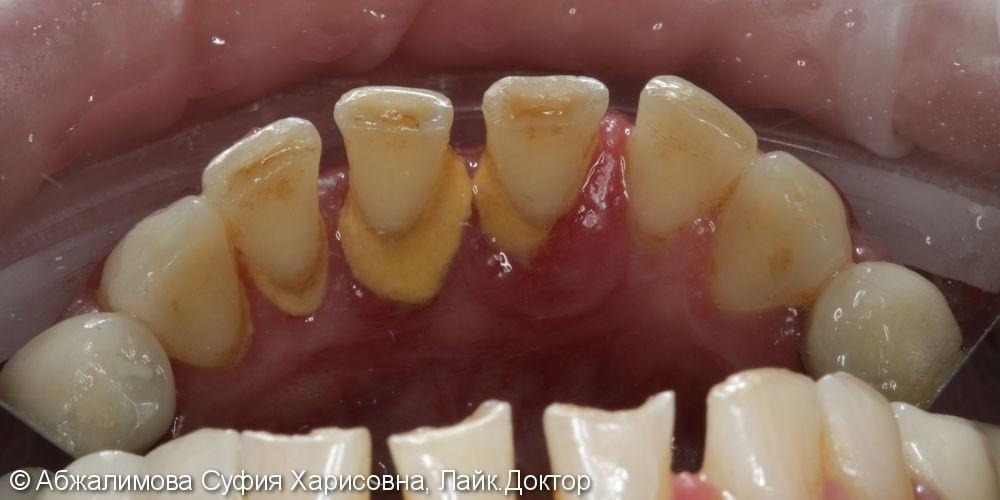 Ультразвуковая чистка зубов, до и после - фото №3