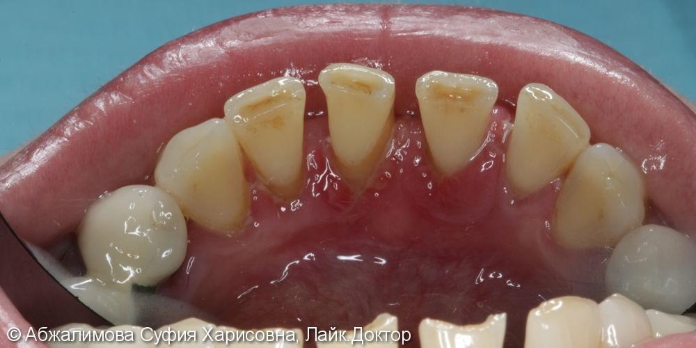 Ультразвуковая чистка зубов, до и после - фото №4