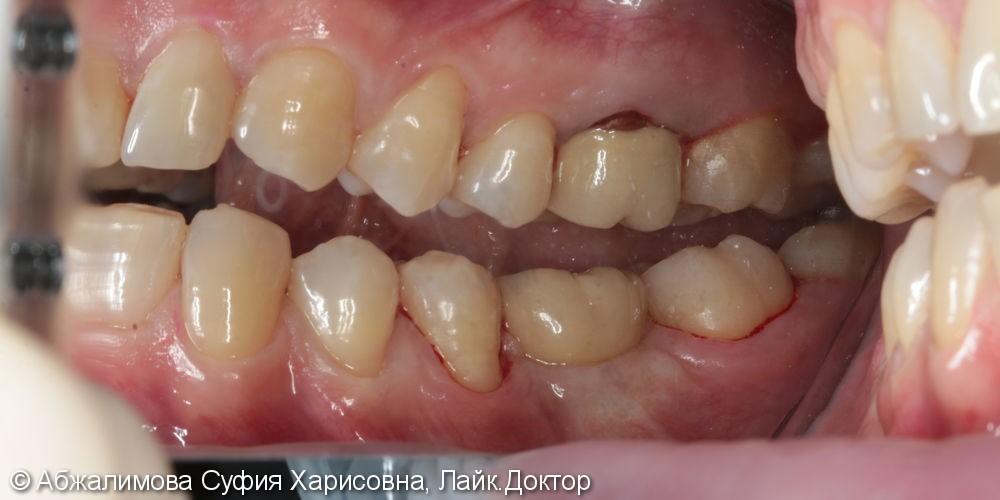 Профессиональная гигиена полости рта Curaprox 260, GC Tooth Mousse - фото №5