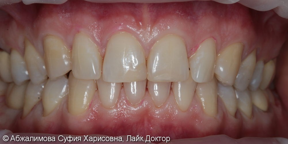 Профессиональная гигиена полости рта Curaprox 260, GC Tooth Mousse - фото №8