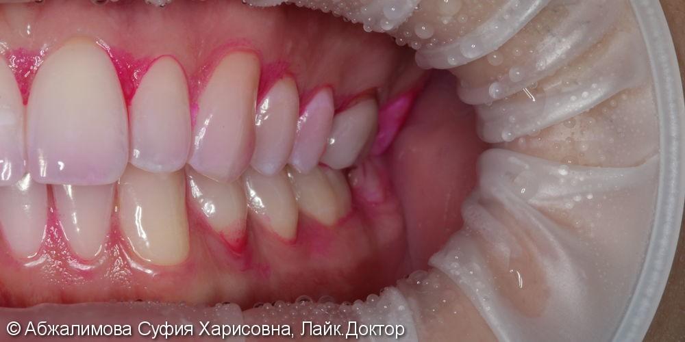 Профессиональная гигиена полости рта - фото №3