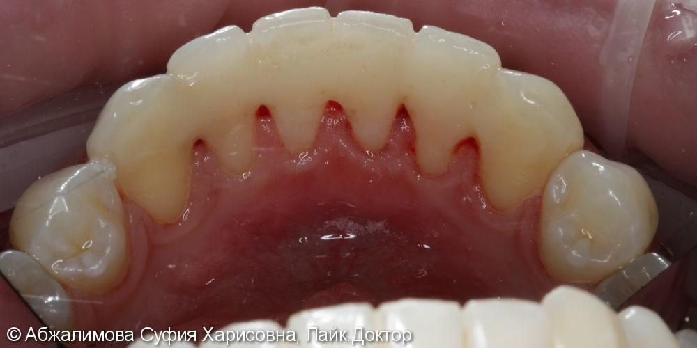 Профессиональная гигиена полости рта - фото №5