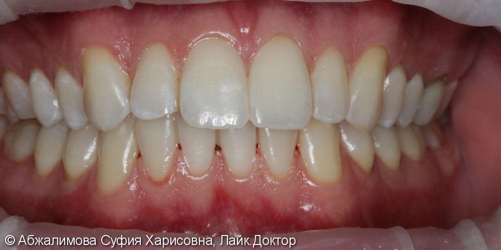 Профессиональная гигиена полости рта - фото №6