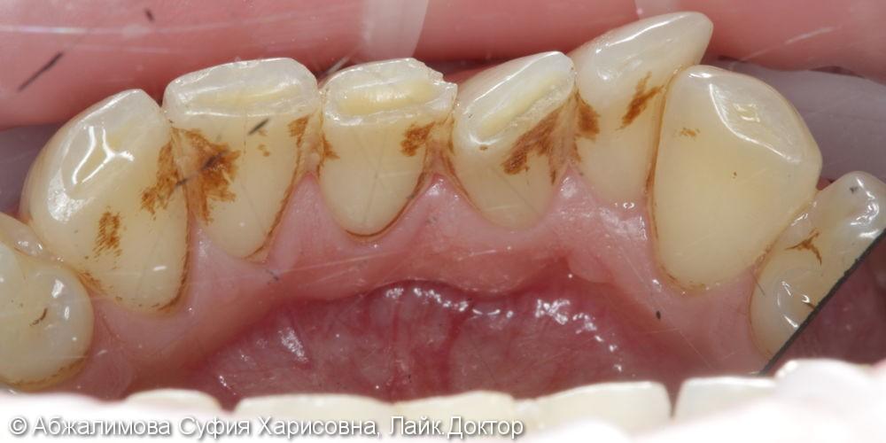 Профессиональная гигиена против налета от сигарет на зубах - фото №1