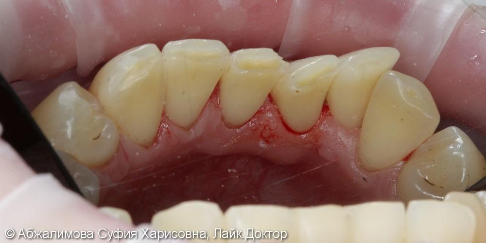 Профессиональная гигиена против налета от сигарет на зубах - фото №11
