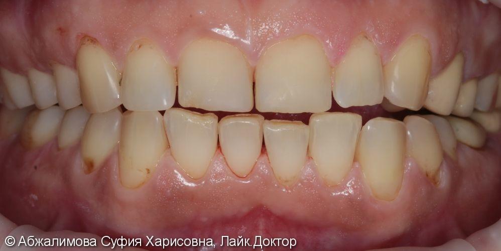 Комплексная гигиена полости рта - фото №5