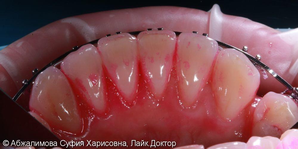 Комплексная гигиена полости рта при прохождении ортодонтического лечения - фото №1
