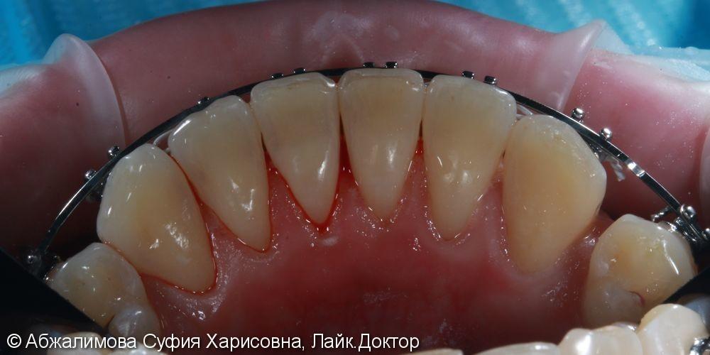 Комплексная гигиена полости рта при прохождении ортодонтического лечения - фото №4
