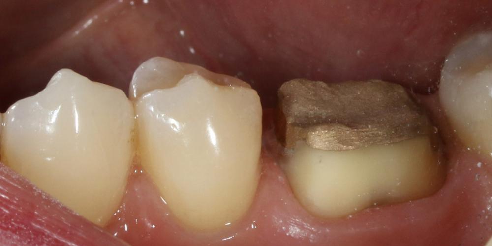 Протезирование жевательного зуба безметалловой коронкой - фото №1