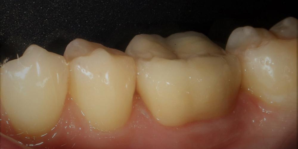 Протезирование жевательного зуба безметалловой коронкой - фото №5