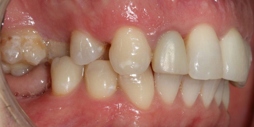 Восстановление жевателньых зубов (имплантация MIS Seven, безметалловые коронки) - фото №1