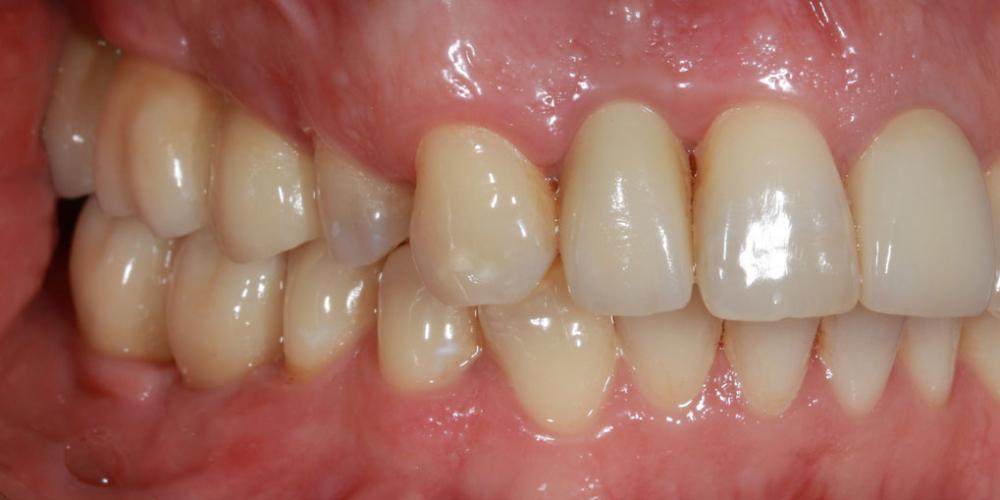 Восстановление жевателньых зубов (имплантация MIS Seven, безметалловые коронки) - фото №8